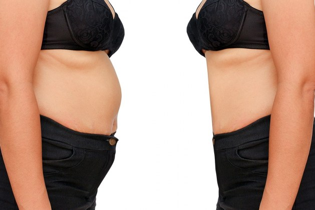 woman-weight-loss-before-after-1